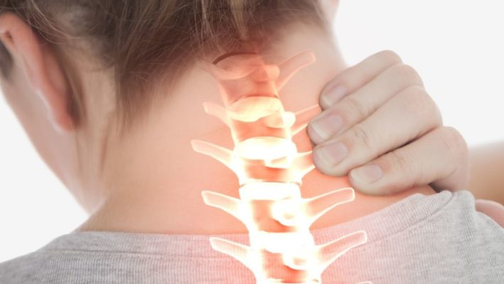 Stiff and painful neck? Facet joint injury explained
