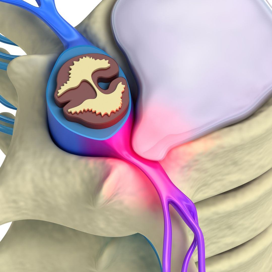 Lumbar Disc Injury